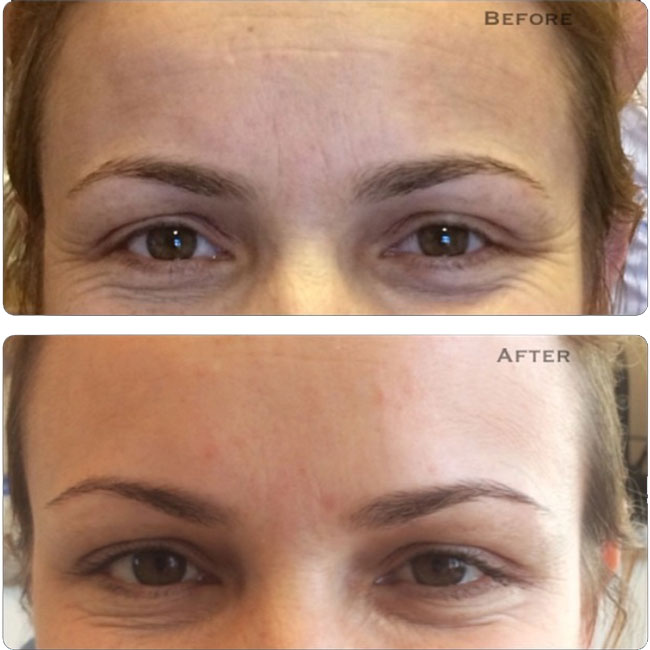Treatments Botox Dr Yusra