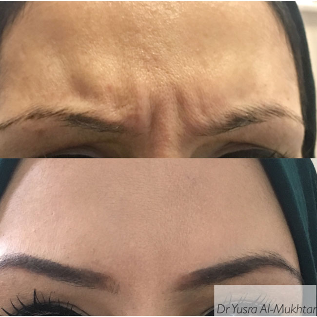 botox images before after