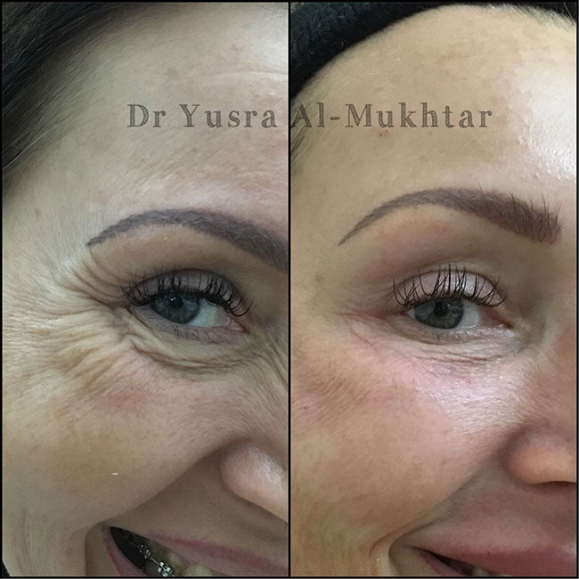 Botox before after image