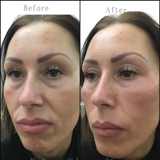 Treatments Dermal Fillers | Dr Yusra