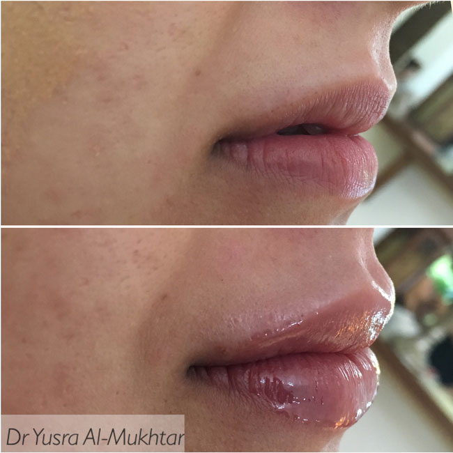 Lip FIllers Image