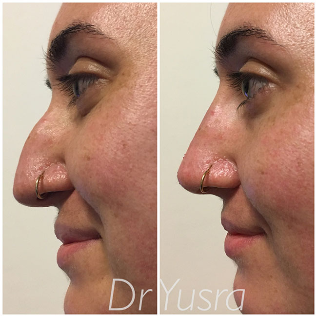 before - after non surgical nose job