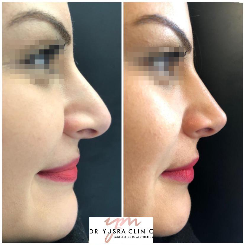 before after non surgical nose job